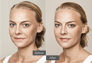 Carlotta – Nasolabial folds (nose-to-mouth), tear troughs (tired eyes), forehead lines