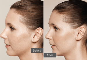 Cecilia – Skin boosters for acne scars