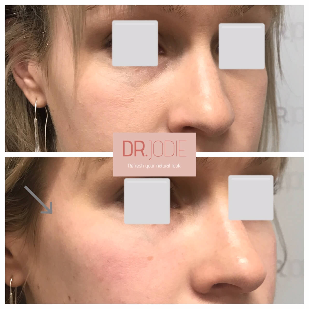 Enhanced Cheeks Dermal Filler Right 45 Dr Jodie Surrey Hills Melbourne