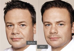 John – Tear troughs (tired eyes), nasolabial folds (nose-to-mouth), forehead lines, marionettes, chin, jawline