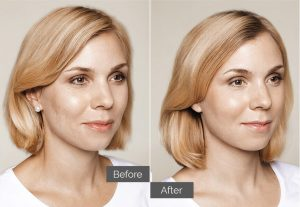 Linda – Skin boosters for acne scars