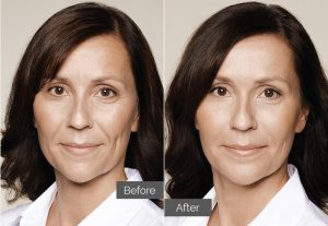 Marie – Tear troughs (tired eyes), nasolabial folds (nose-to-mouth), jawline
