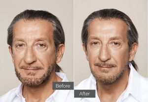 Max – Cheeks, tear troughs (tired eyes), nasolabial folds (nose-to-mouth)