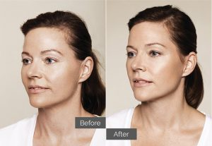 Maya – Skin boosters for lip & whole face rejuvenation