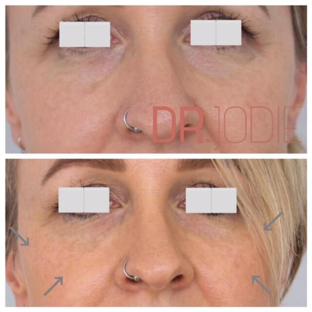 Mid Facelift Facial Rejuvenation Dermal Filler Front Dr Jodie Surrey Hills Melbourne