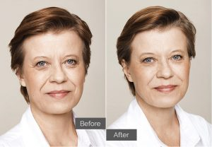 Sandra – Cheeks, tear troughs (tired eyes), nasolabial folds (nose-to-mouth), forehead lines
