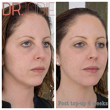 Liquid Face Lift Top Up Dr Jodie Surrey Hills Melbourne