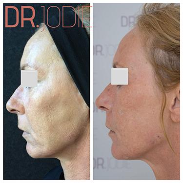 Whole Face Jawline Filler Dr Jodie Surrey Hills Melbourne Side Left 90