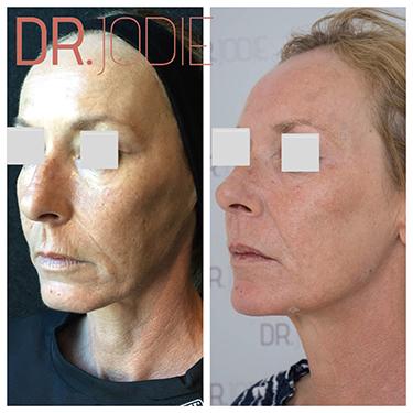 Whole Face Jawline Filler Dr Jodie Surrey Hills Melbourne Side Left