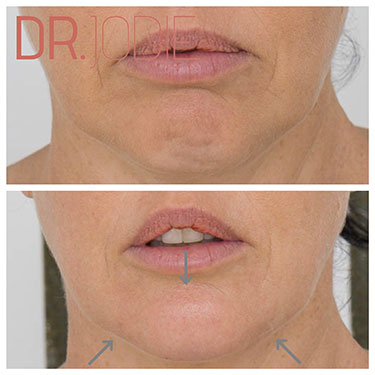 Chin Reshaping