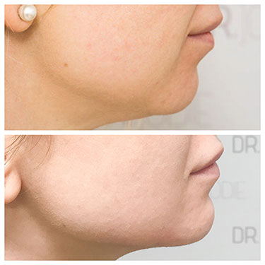 Chin Reshaping 06