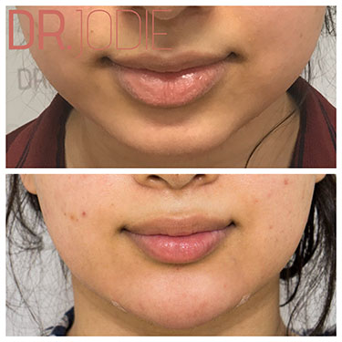 Chin Reshaping 13