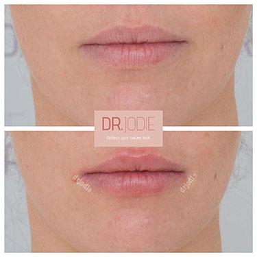 Lip Filler 02