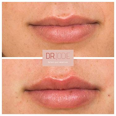 Lip Filler 12