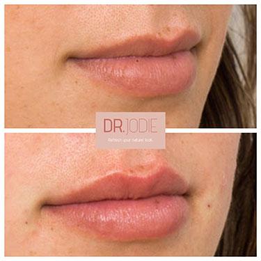 Lip Filler 15