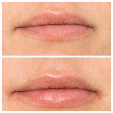 Lip Filler 16