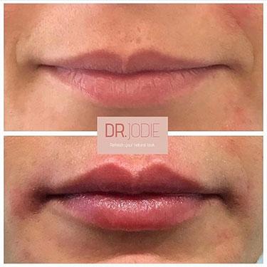 Lip Filler 27