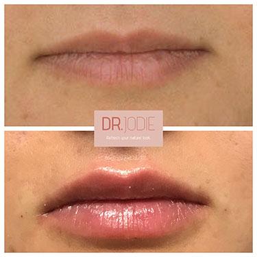 Lip Filler 29
