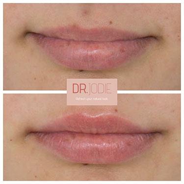 Lip Filler 30