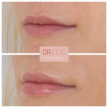 Lip Filler 44