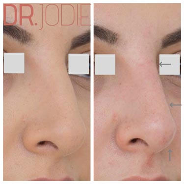 Liquid Nose Job Dr Jodie Surrey Hills Melbourne
