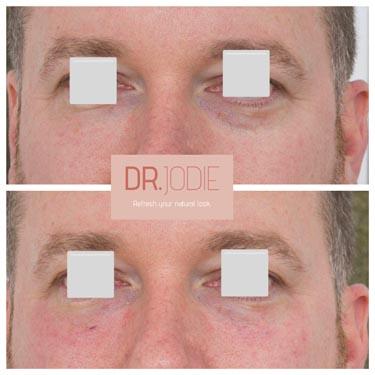 Male Tear Troughs Dr Jodie Surrey Hills Melbourne
