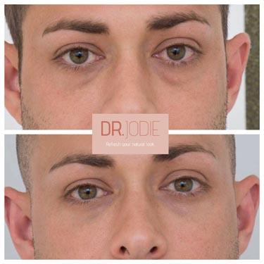 Tear Troughs Derrmal Filler Male Face Dr Jodie Surrey Hills Melbourne