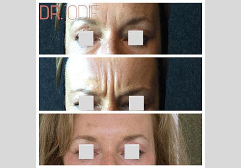 Anti Wrinkle Injections Dermal Filler Frown Dr Jodie Surrey Hills Melbourne