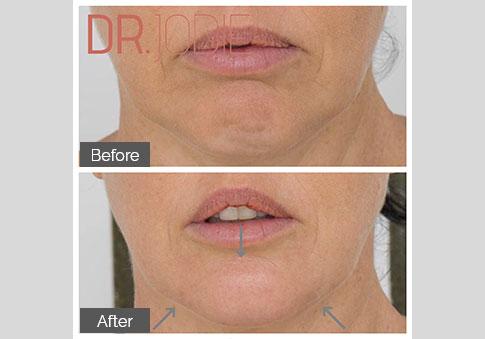 Chin Projection Dermal Filler Dr Jodie Surrey Hills Melbourne