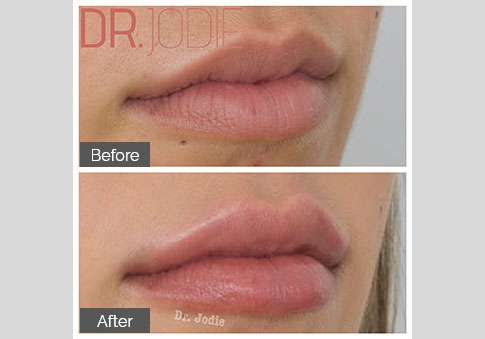 Full Lip Side View Right Dr Jodie Surrey Hills Melbourne
