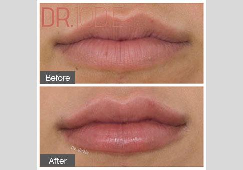 Full Lips Front Dr Jodie Surrey Hills Melbourne