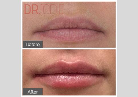 Gorgeous Lip Filler Dr Jodie Surrey Hills Melbourne