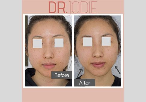 Jawline Slimming Full Face No Makeup Dr Jodie Surrey Hills Melbourne