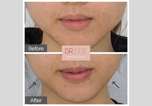 Jawline Slimming No Makeup Dr Jodie Surrey Hills Melbourne