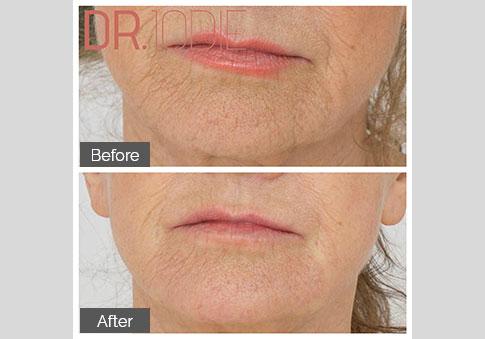 Lower Face Dermal Filler Skin Boosters Dr Jodie Surrey Hills Melbourne