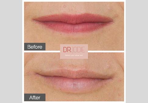Mature Lip Filler Dr Jodie Surrey Hills Melbourne