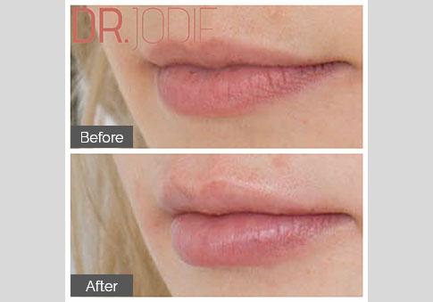 Perfect Lip Side View Left Dr Jodie Surrey Hills Melbourne