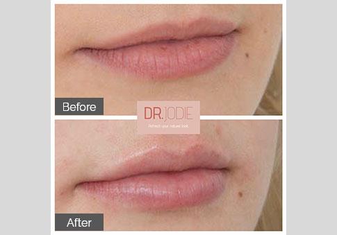 Perfect Lip Side View Right Dr Jodie Surrey Hills Melbourne