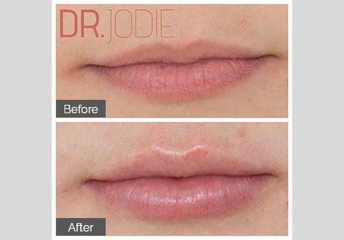 Perfect Shape Lip Filler Dr Jodie Surrey Hills Melbourne