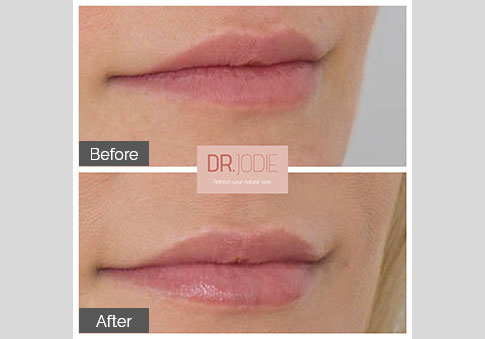 Soft Lip Filler Dr Jodie Surrey Hills Melbourne