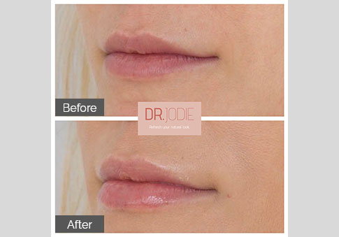 Soft Lip Filler Lateral View Right Dr Jodie Surrey Hills Melbourne