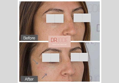 Subtle Cheek Tear Trough Filler Side View Right Dr Jodie Surrey Hills Melbourne