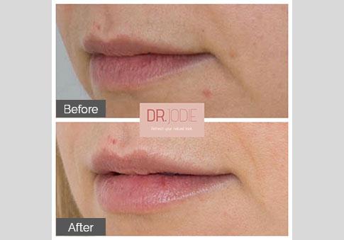 Subtle Lip Filler Dr Jodie Surrey Hills Melbourne