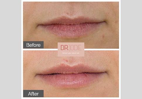 Subtle Lip Filler Front Dr Jodie Surrey Hills Melbourne