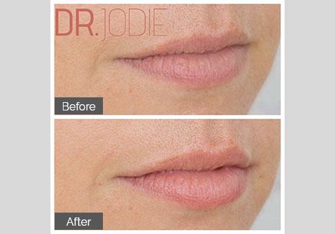 Super Subtle Lip Filler Dr Jodie Surrey Hills Melbourne
