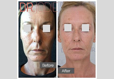 Whole Face Jawline Filler Dr Jodie Surrey Hills Melbourne Front
