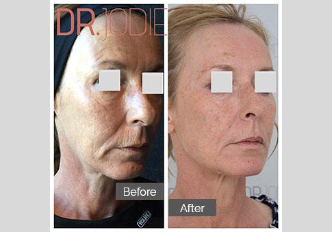 Whole Face Jawline Filler Dr Jodie Surrey Hills Melbourne Side Right