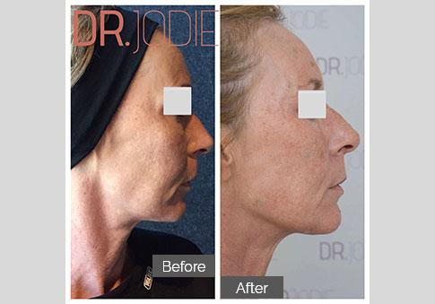 Whole Face Jawline Filler Dr Jodie Surrey Hills Melbourne Side Right 90